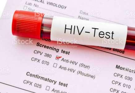 Besplatno testiranje na HIV od 25. novembra do 1. decembra